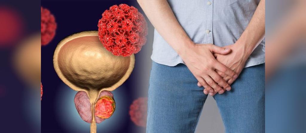 علائم هایپرپلازی خوش خیم پروستات