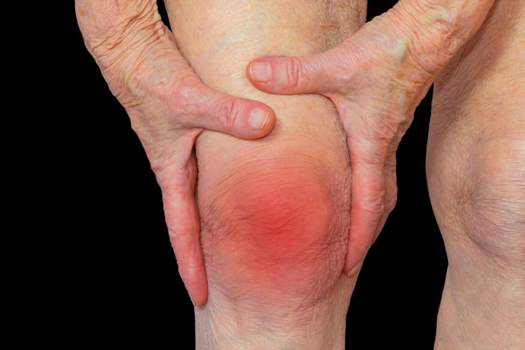 درمان آرتروز با دمنوش دارچین و زنجبیل