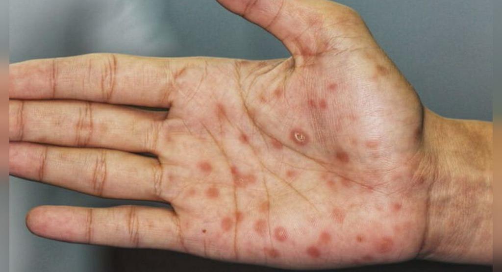 علائم بیماری سیفلیس از بیماری های آمیزشی منتقله