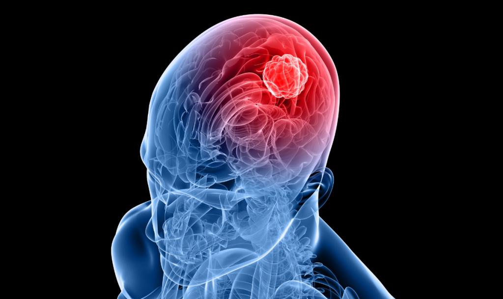 چه عاملی باعث ایجاد تومورهای مغزی می شود؟