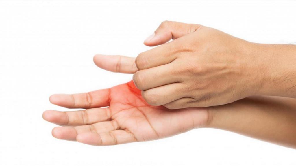 چرا کف دست دچار خارش می شود و دلایل و راه های درمان آن چیست؟