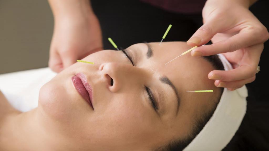 جوان سازی و روشن شدن پوست صورت با استفاده از طب سوزنی