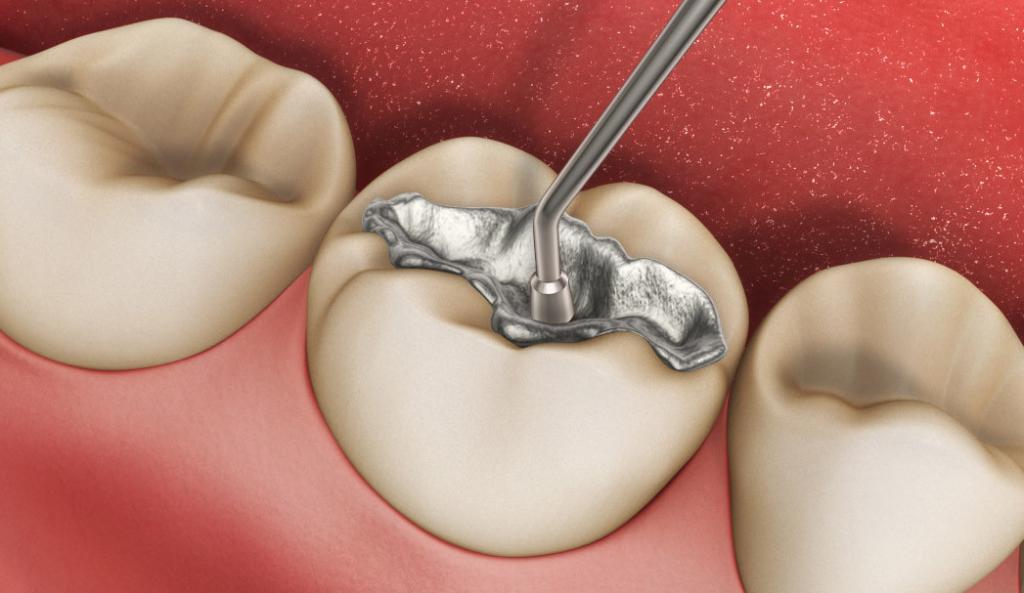 دلایل شایع حساسیت دندان