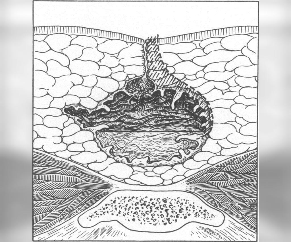 درمان کیست مویی (سینوس پیلونیدال)