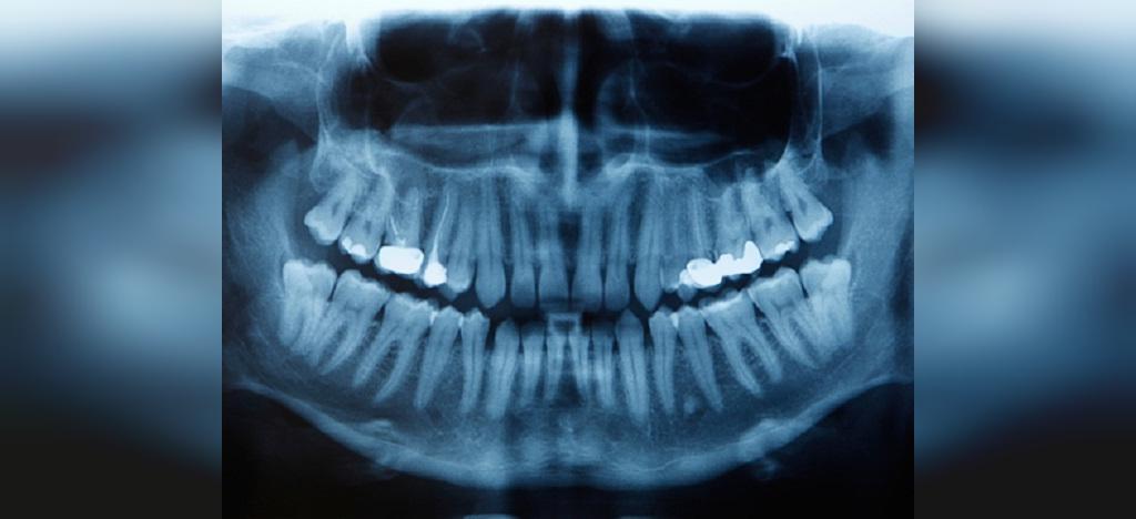 آیا پرتوهای ایکس (پرتو نگاری دندان) در دوران بارداری بی خطر هستند؟