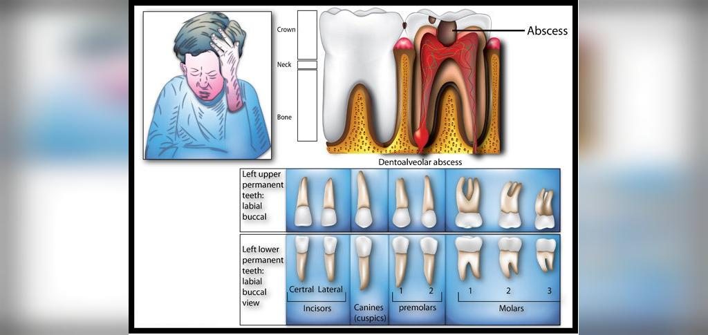 علت های دندان درد