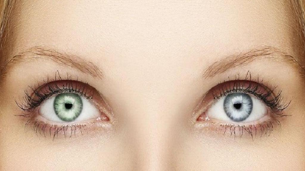 هتروکرومیا چیست؛ انواع، علل و درمان چشم دو رنگ