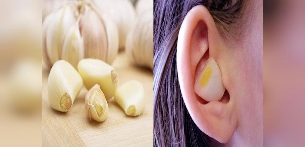درمان عفونت گوش با سیر