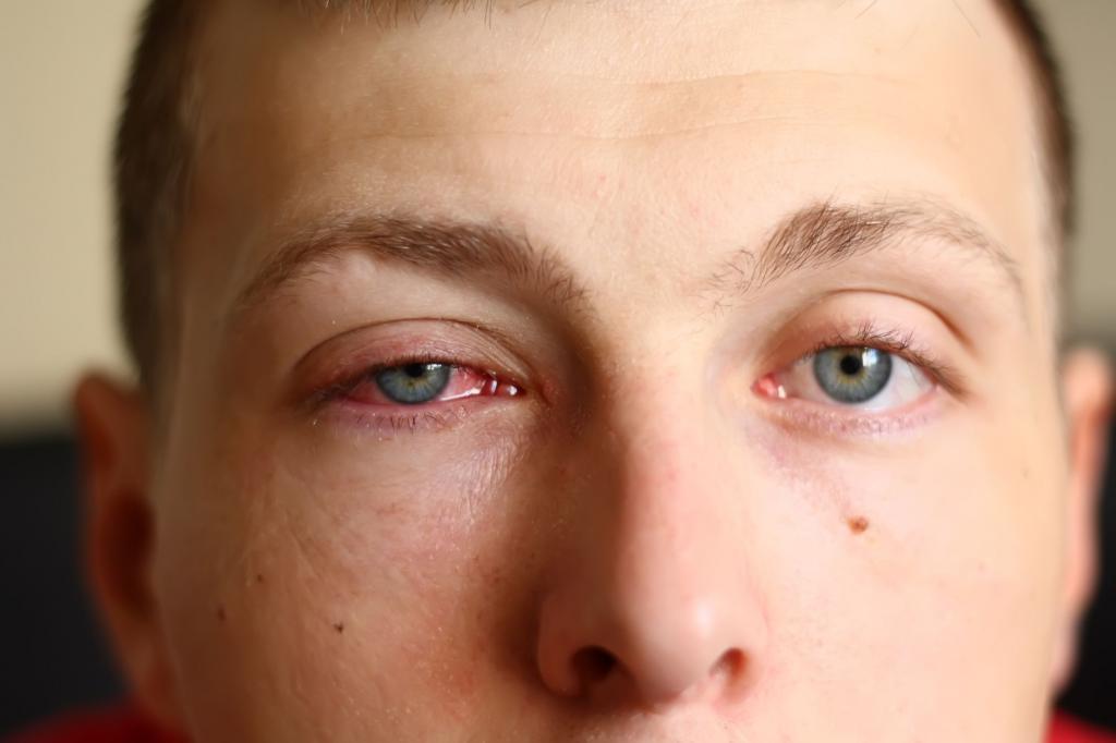مشکلات چشمی که باعث بروز  فتوفوبیا یا حساسیت به نور می شوند