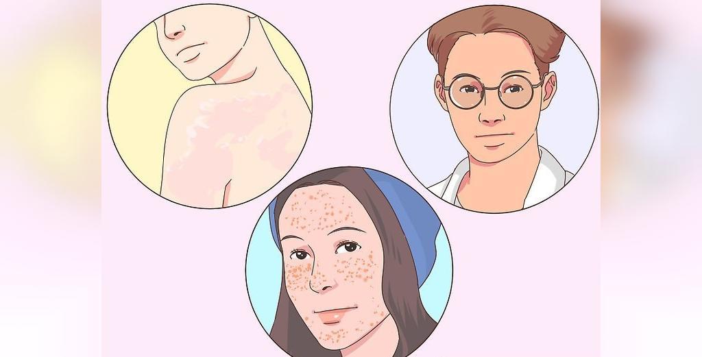 تشخیص زمینه پوست با توجه به واکنش به نور خورشید