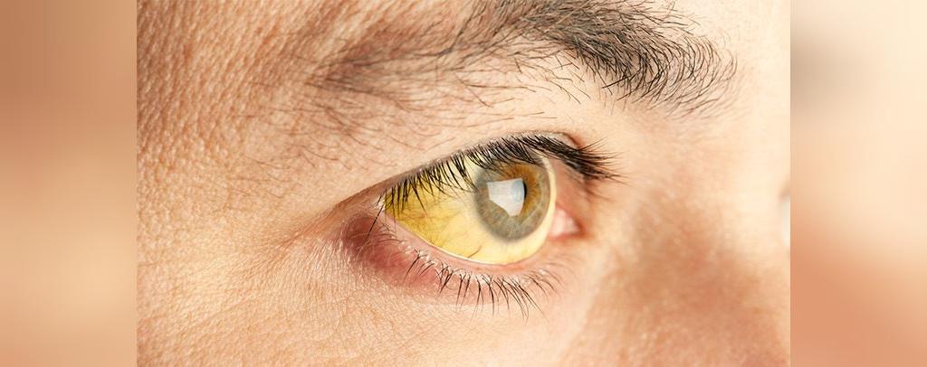 هپاتیت A بیماری آمیزشی دهانی