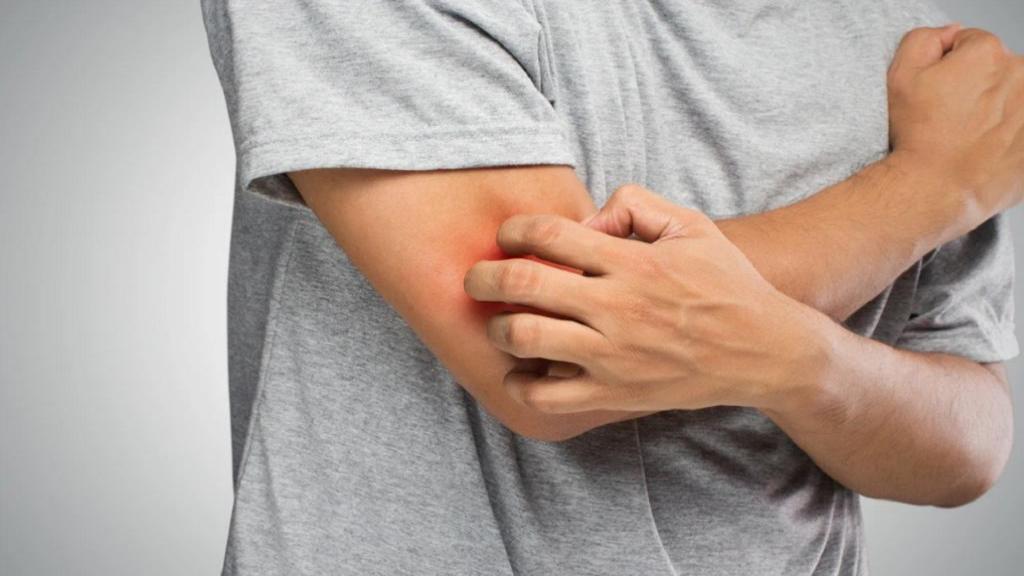 بیماری پمفیگوئید چیست + علل و درمان بیماری بولوس پمفیگوئید