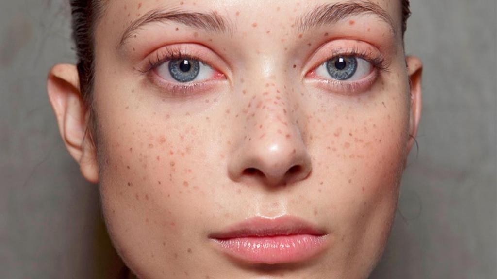 لکه های تیره (قهوه ای) روی پوست؛ علل، تشخیص، روش درمان پزشکی، خانگی و جلوگیری از آنها