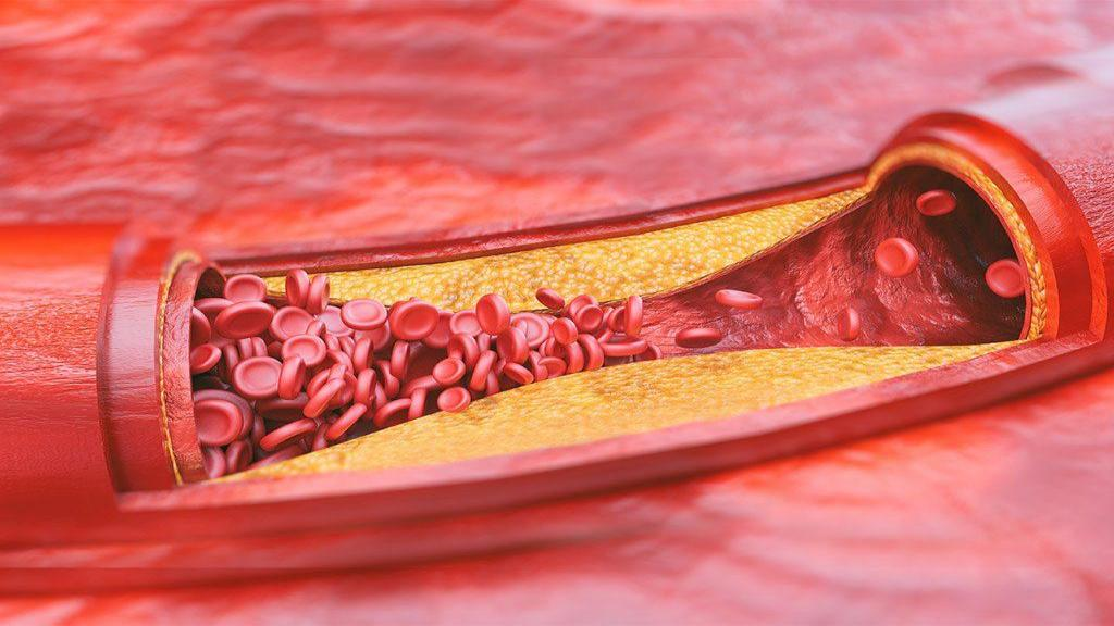 کلسترول بالا، دلایل، علائم و روش های درمان کلسترول بالا