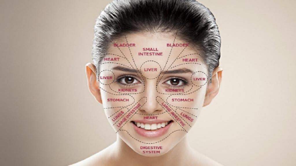 علت جوش در نقاط مختلف صورت چیست + درمان جوش زدن صورت