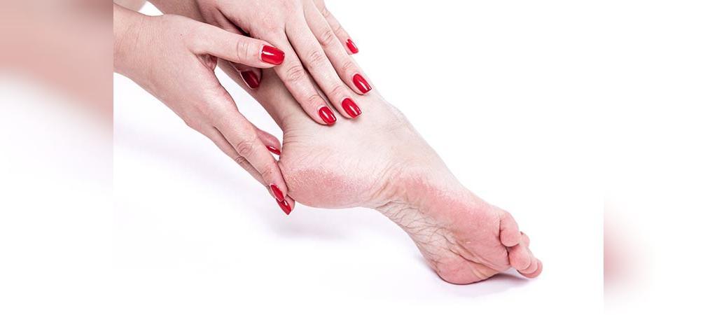 درمان ترک پا با زردچوبه