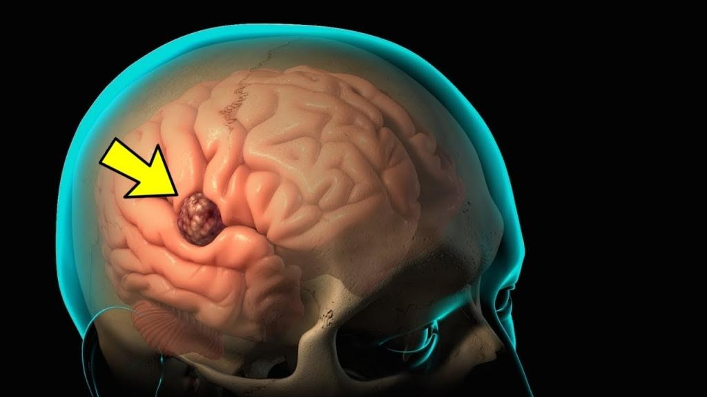 سردردهای ناشی از تومورهای مغزی با حالت تهوع و استفراغ همراه است