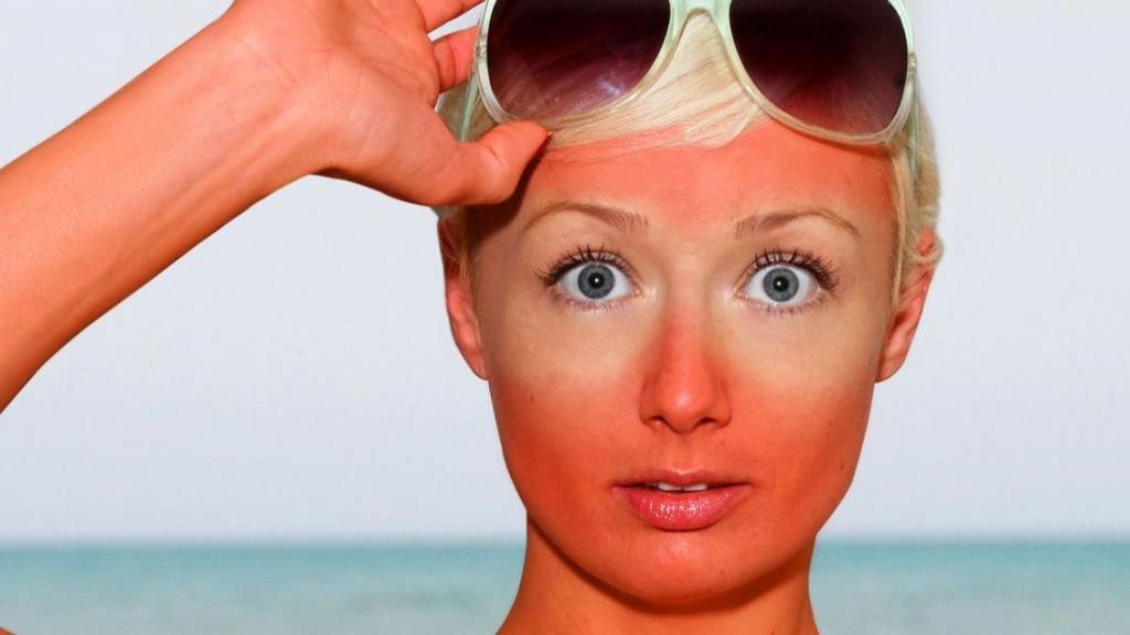 چطور آفتاب سوختگی را در خانه درمان کنیم و از وقوع آن پیشگیری کنیم؟
