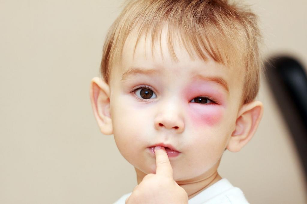 آلرژی فصلی در نوزادان از چه زمانی رخ می دهد؟