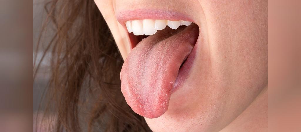 چرا زخم دهان سریع خوب می شود؟