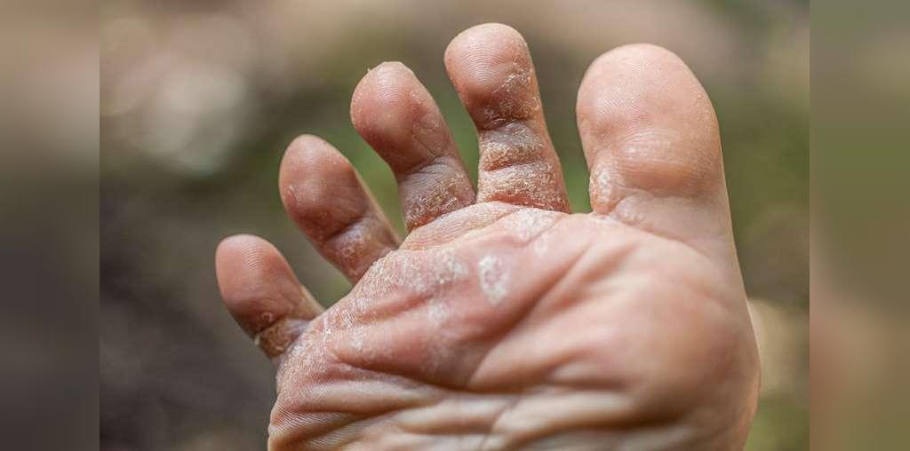 روش درمان خانگی بیماری قارچ انگشتان پا (پای ورزشکار)