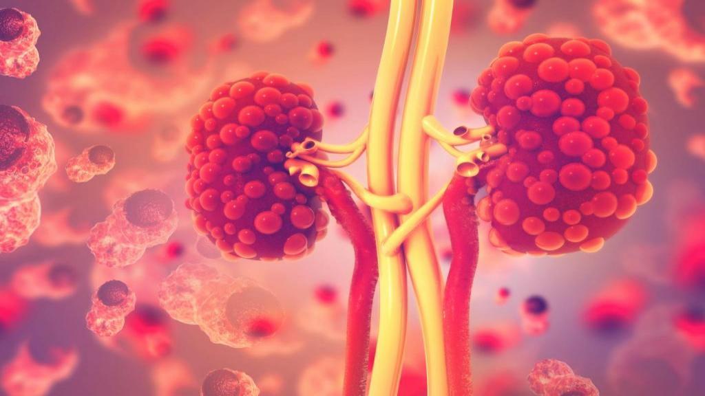 کیست کلیه چیست؛ علت و درمان های طبیعی و پزشکی آن