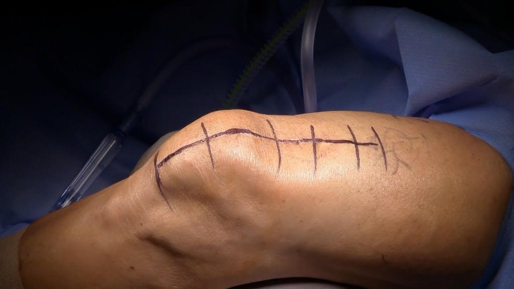 عمل جراحی پارگی تاندون ماهیچه چهار سر