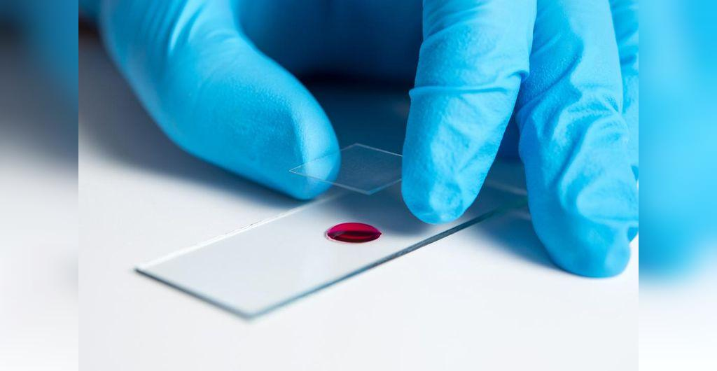 تفسیر آزمایش نیتروژن اوره خون