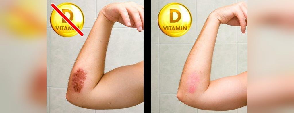 عوارض کمبود ویتامین دی