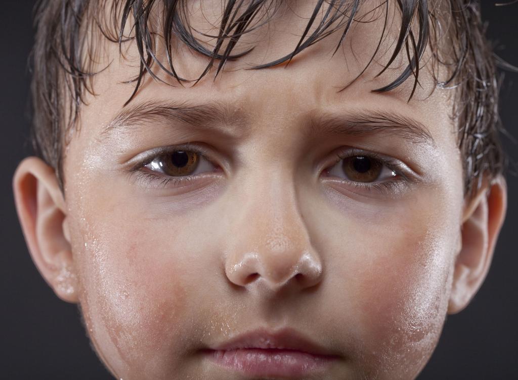 نشانه ها و علائم هایپرهیدروسیز در نوزادان