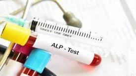 تست ALP آزمایش خون چگونه انجام می شود؟ + تفسیر نتایج این آزمایش