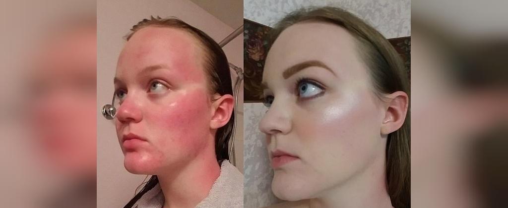 درمان آفتاب سوختگی با سرکه سیب
