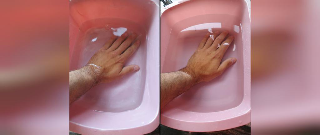 درمان های خانگی ورم انگشتان