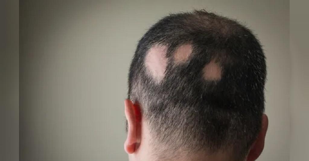 علل نازک شدن موها