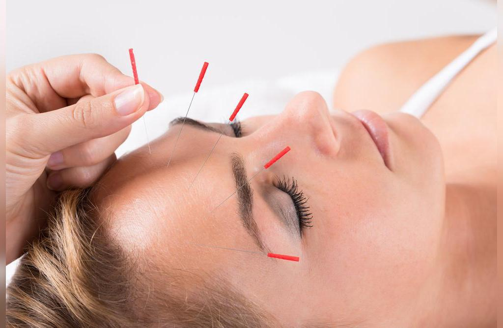 کاهش سردرد با طب سوزنی