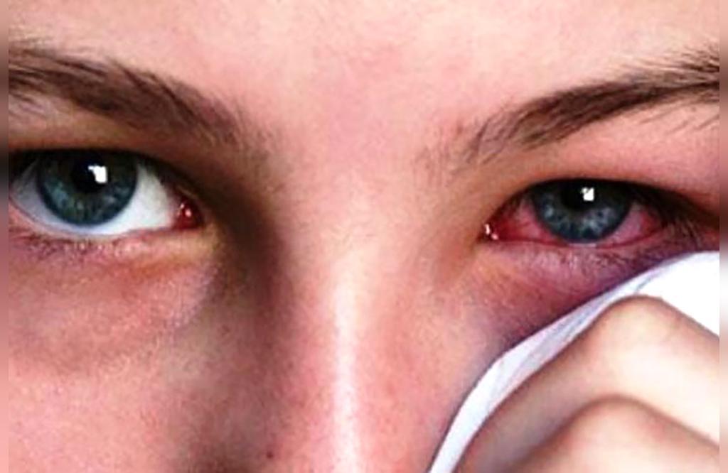 علت بروز لکه های چشمی چیست؟