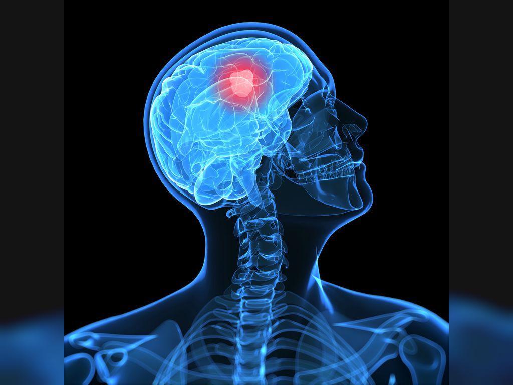 هر آنچه درباره آلزایمر باید بدانید