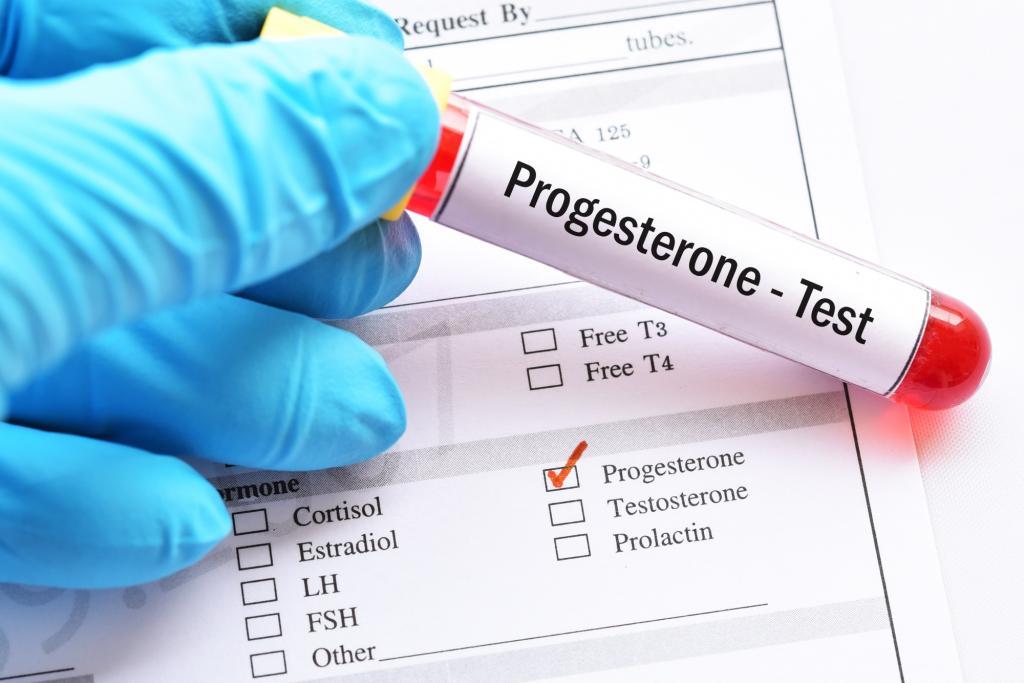 سطح پروژسترون طبیعی چه میزان است؟