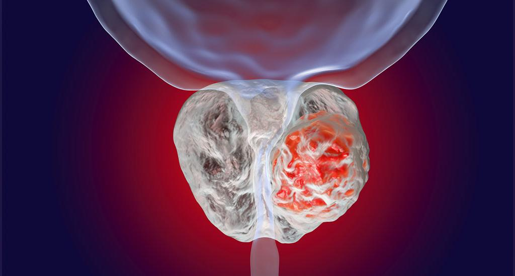 مقایسه هایپرپلازی خوش خیم پروستات و سرطان پروستات
