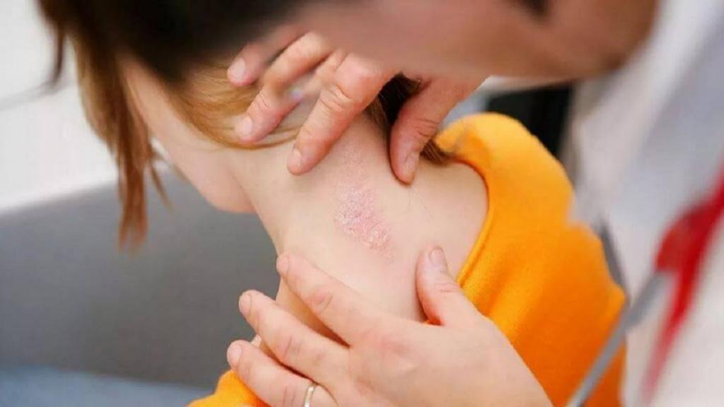 بیماری پوستی پسوریازیس [صدفک] از علائم تا بهترین درمان آن