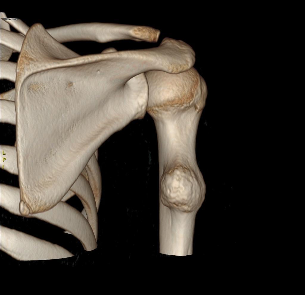دلایل بروز ضایعات استخوانی خوش خیم