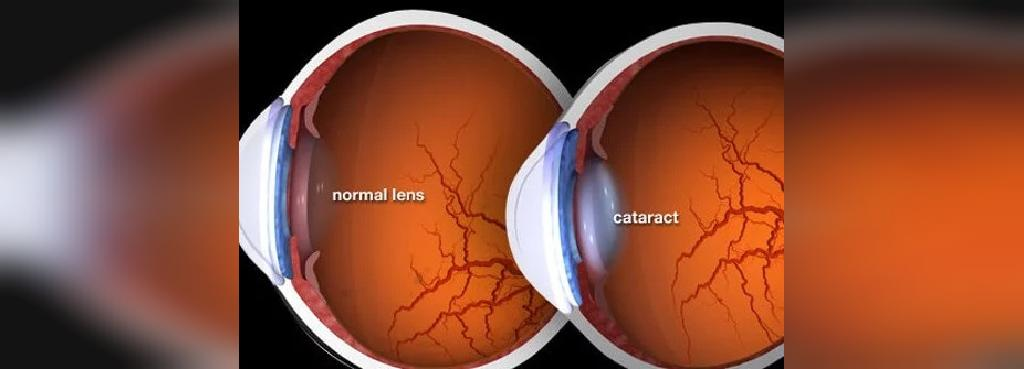 چگونه آب مروارید بر بینایی شما اثر می گذارد؟