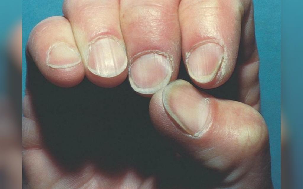 قوس ناخن چیست و چگونه تشخیص داده می شود؟