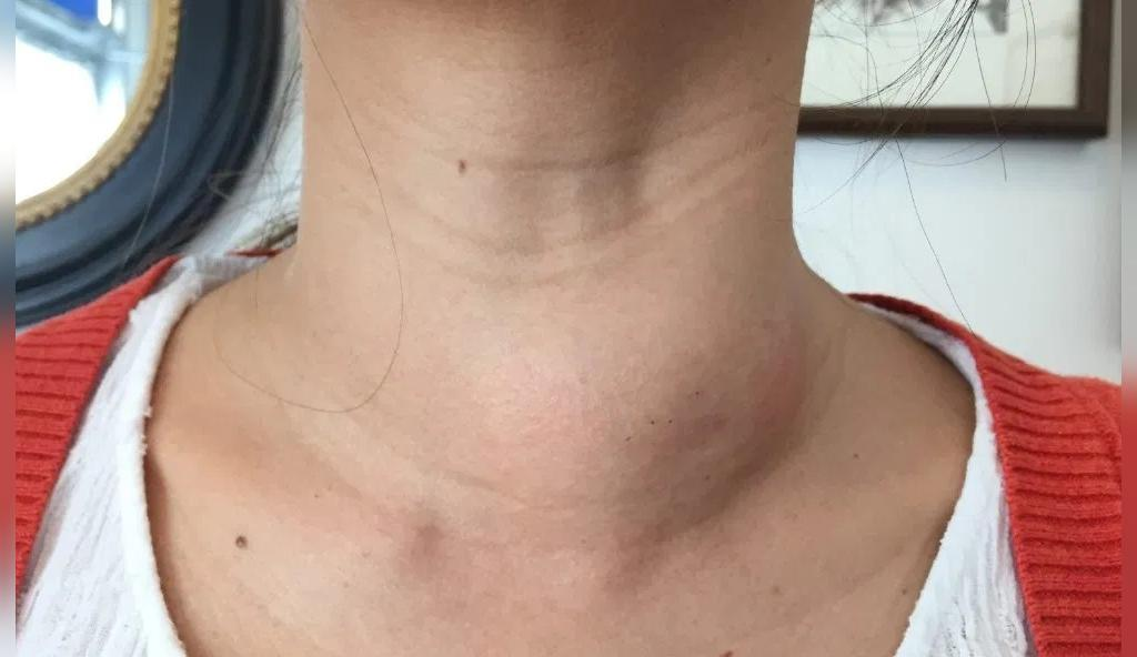 تورم گردن، از نشانه های مشکل در سلامتی بدن