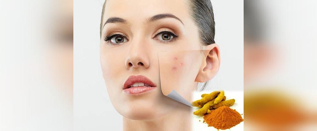 درمان جوش صورت با زردچوبه
