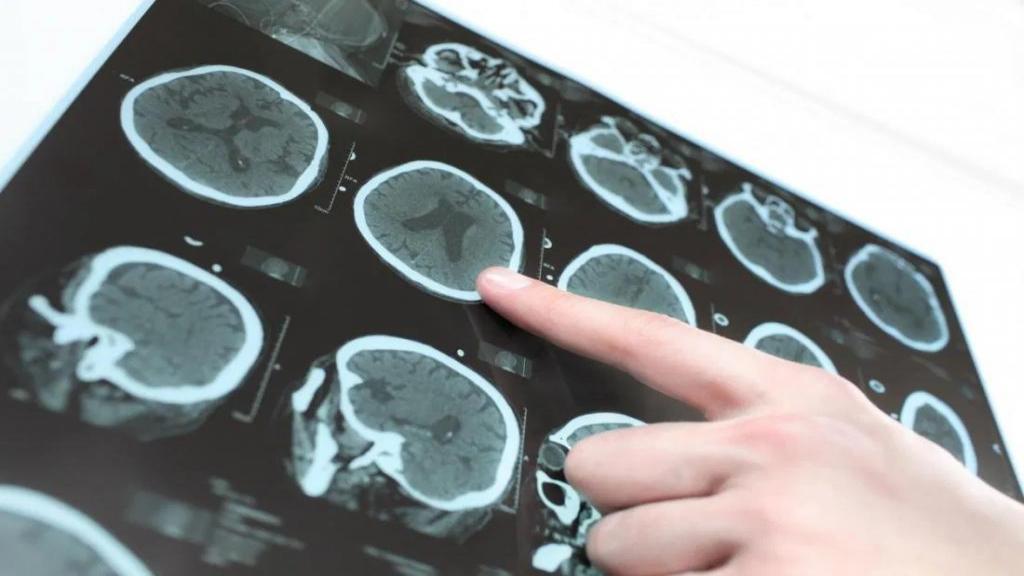 هیدروسفالی یا آب آوردن مغز چیست: علل، علائم، تشخیص و درمان و پیشگیری آن