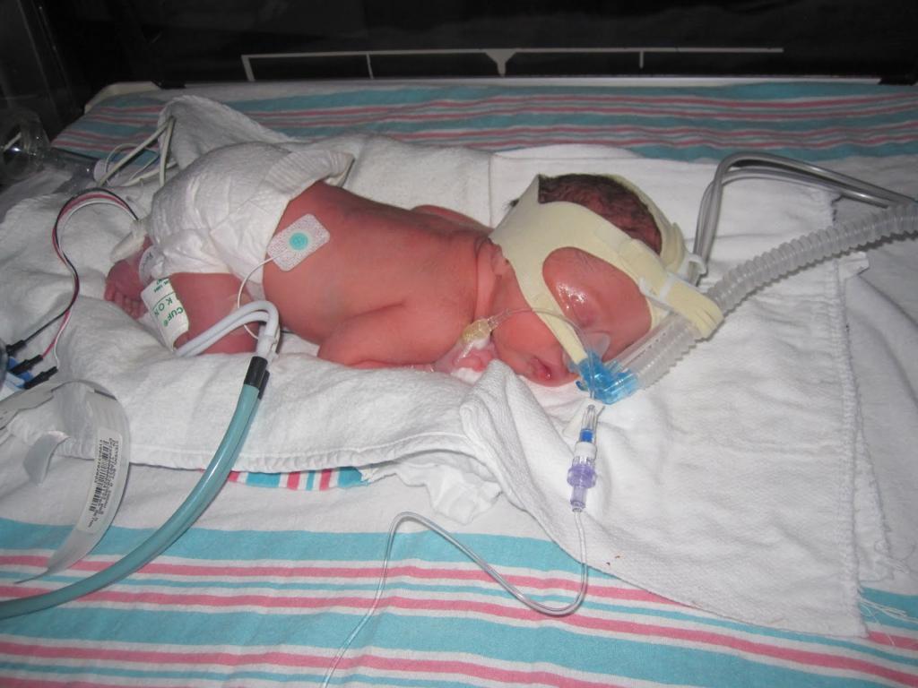 عوارض جانبی تولد نوزاد با وزن کم