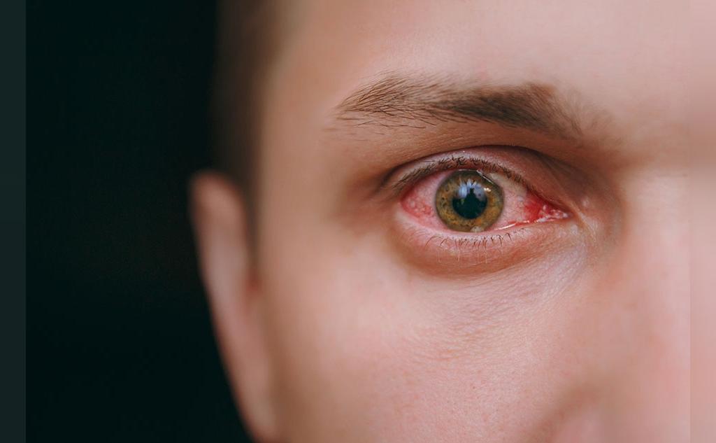 انواع و علائم سیفلیس چیست؟