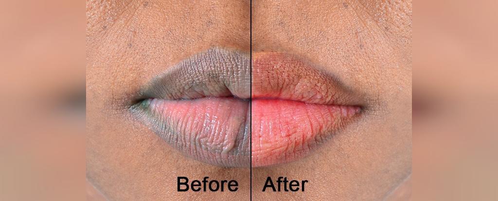 نکات مهم برای داشتن لب های صورتی طبیعی