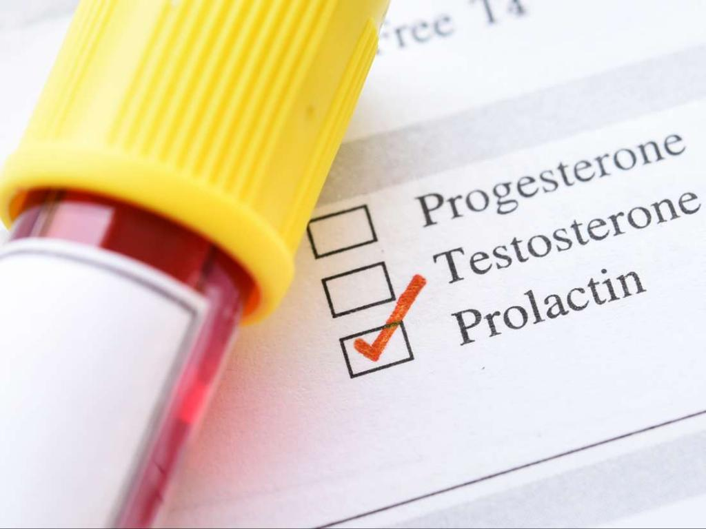 روش تشخیص و درمان هایپرپرولاکتینمی یا سطح بالای پرولاکتین